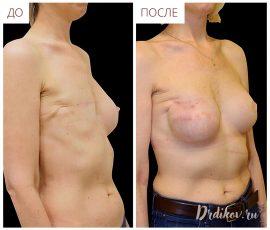 Реконструкция правой груди, вид спереди и справа