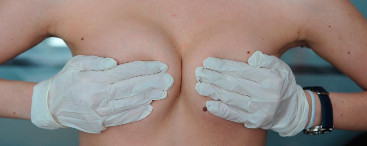 Заживление груди после операции