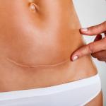 Кожный клей или нити: как получить самый незаметный шов после операции?