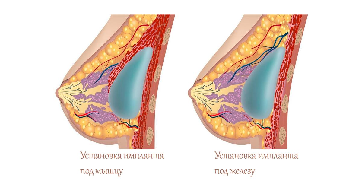 Способы установки грудного импланта