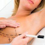 Чего ожидать после уменьшения груди?